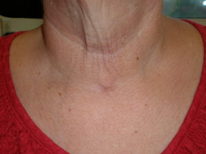 minimally invasive total thyroidectomy incision
