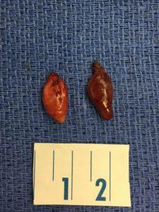 double adenoma