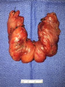 Typical appearance of a thyroid removed from a patient with Graves' disease