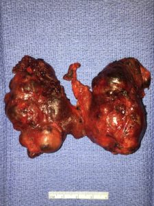 Typical appearance of a multinodular thyroid goiter