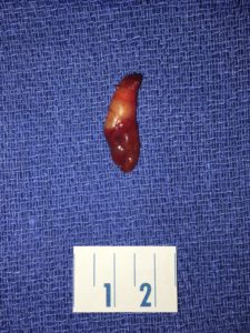 Typical appearance of a parathyroid adenoma