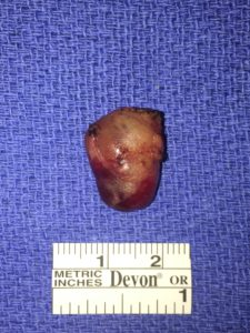 Large parathyroid adenoma